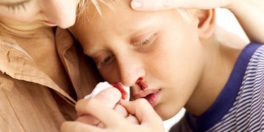 3. Người bị bệnh gan dễ xuất huyết 1