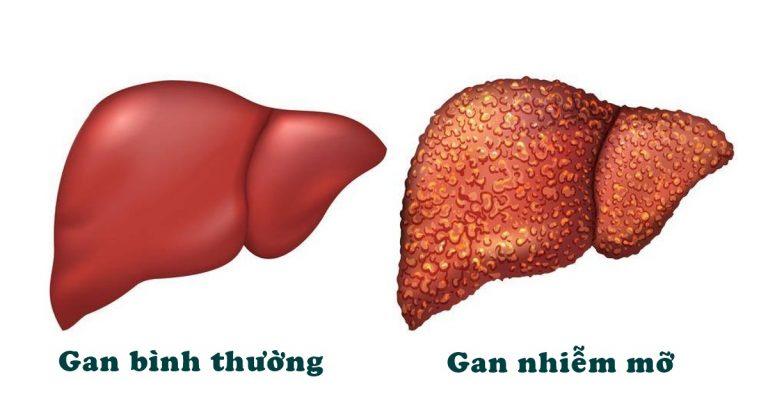 Bệnh gan nhiễm mỡ và triệu chứng 1