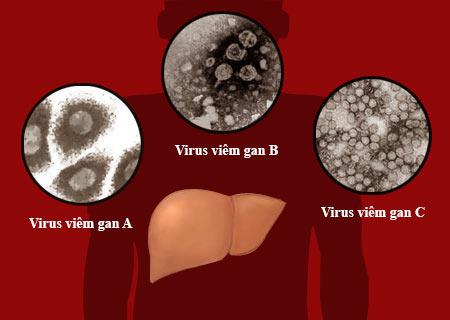 Tìm hiểu chung về bệnh viêm gan A 1